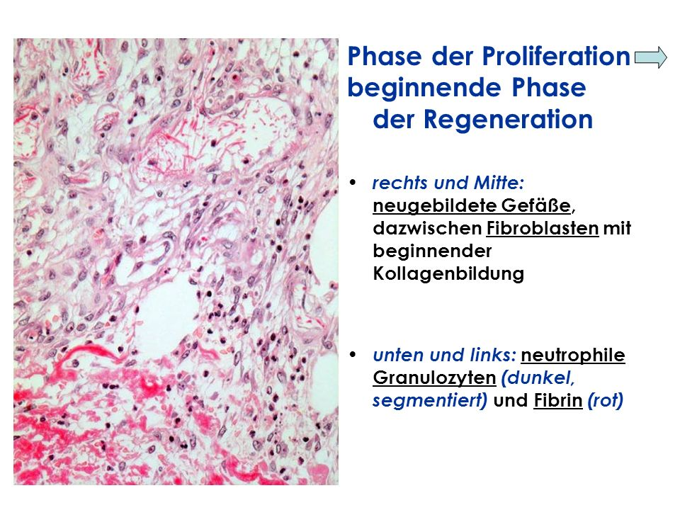 Phase der Proliferation beginnende Phase der Regeneration