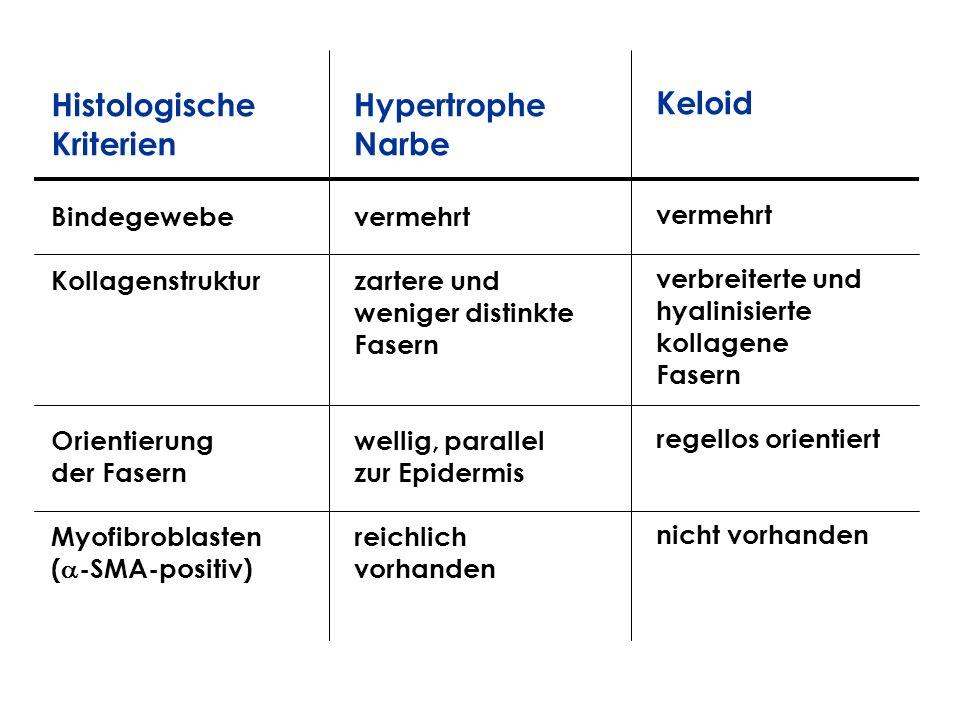 Histologische Kriterien Hypertrophe Narbe Keloid Bindegewebe