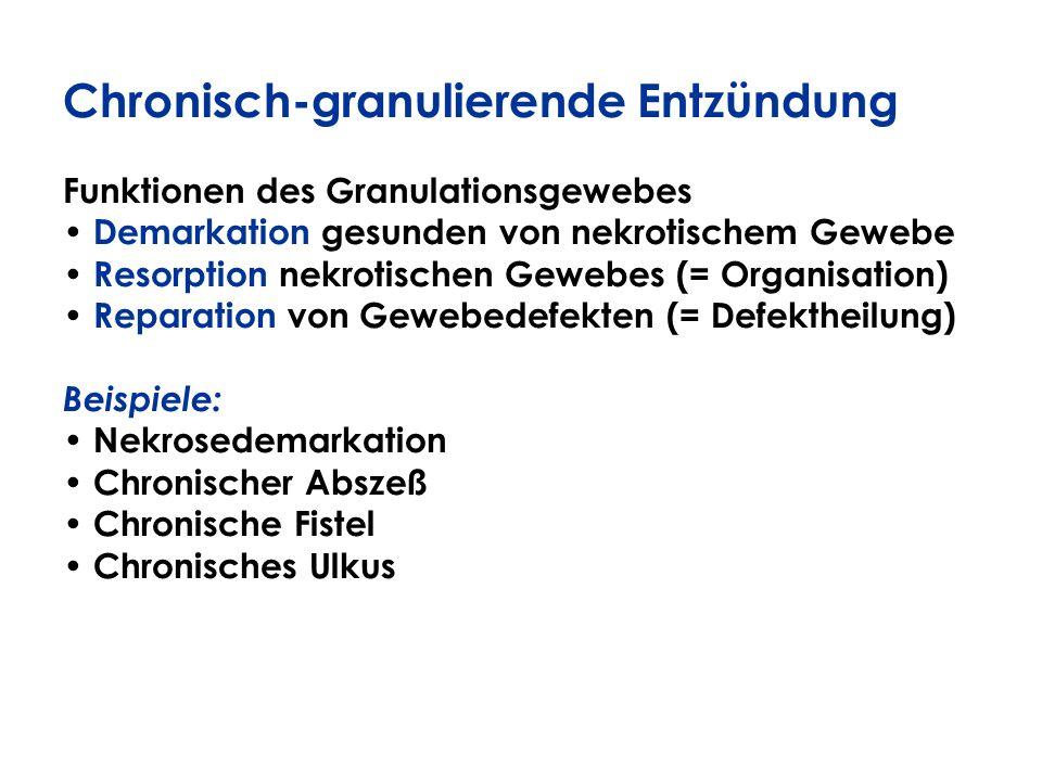 Chronisch-granulierende Entzündung