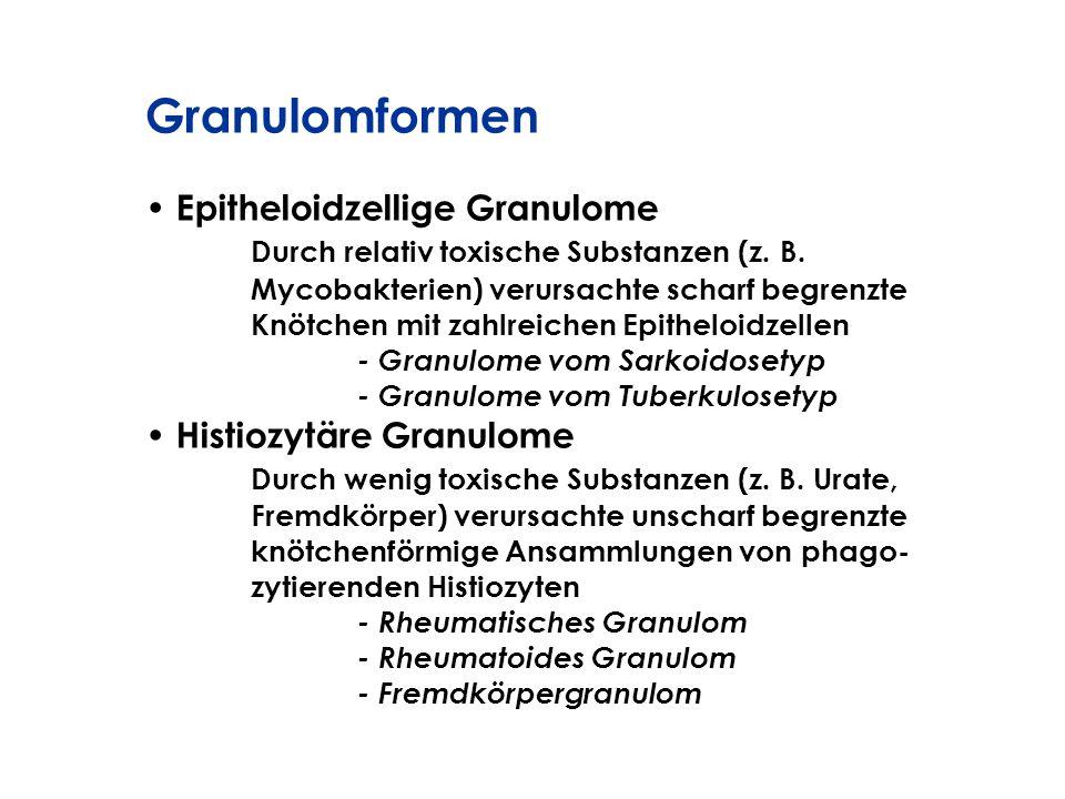 Granulomformen Epitheloidzellige Granulome
