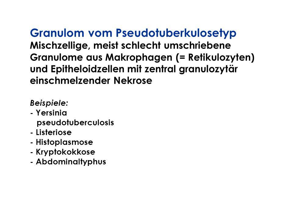 Granulom vom Pseudotuberkulosetyp