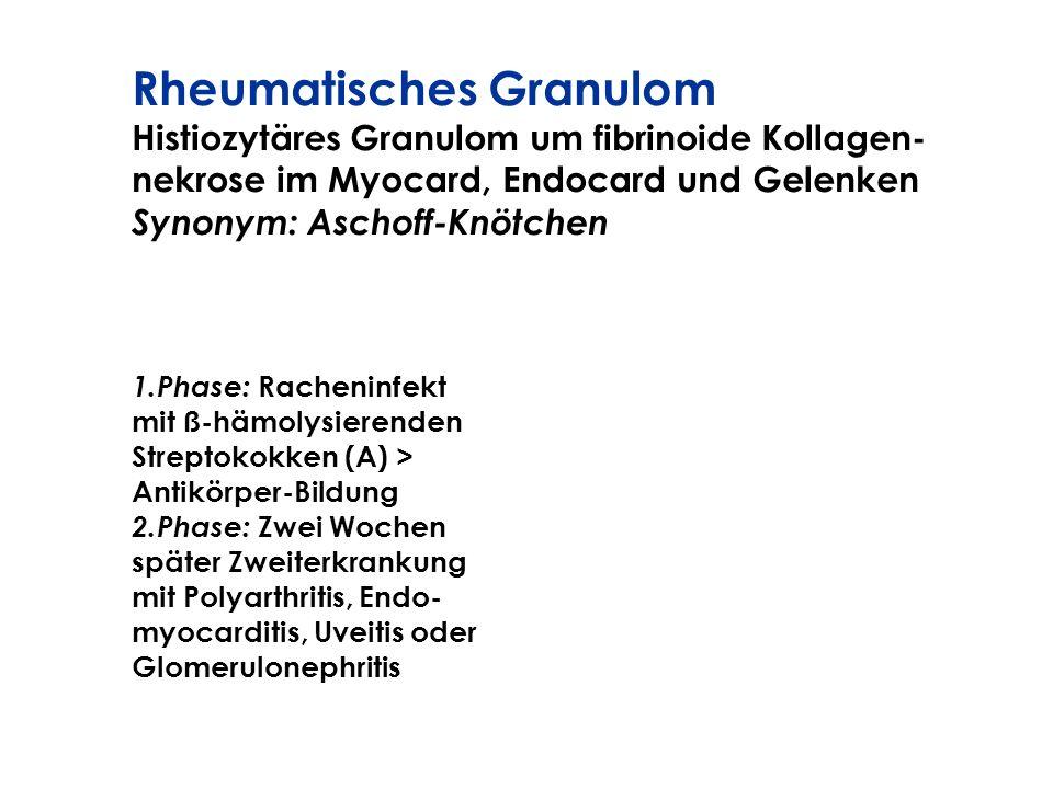 Rheumatisches Granulom