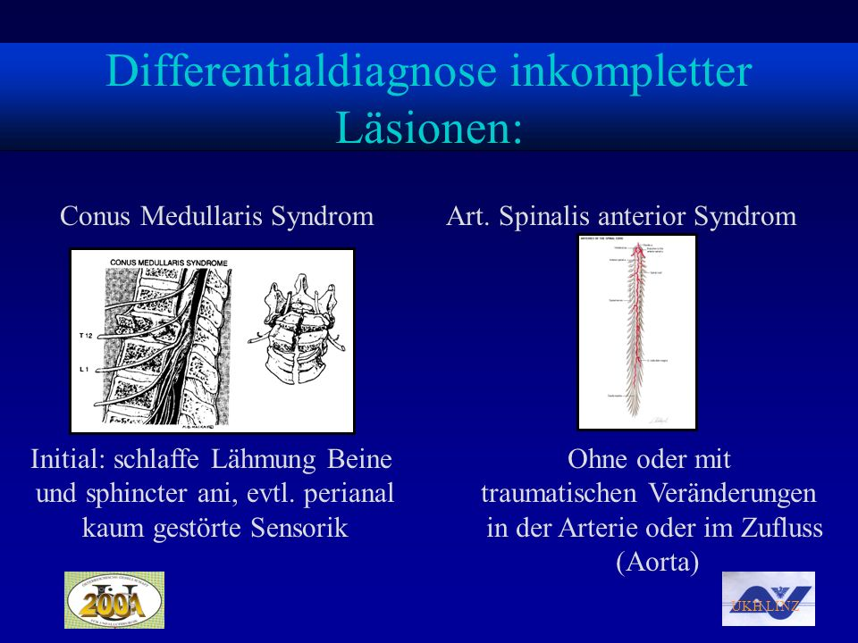 Differentialdiagnose inkompletter Läsionen: