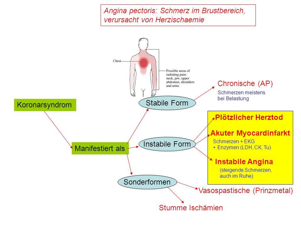 Angina pectoris: Schmerz im Brustbereich, verursacht von Herzischaemie