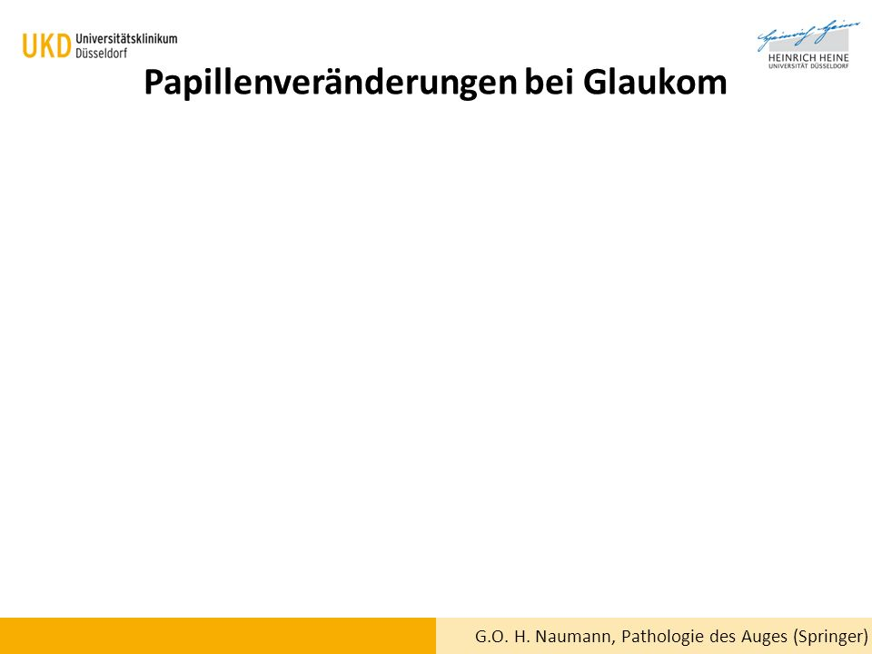 Papillenveränderungen bei Glaukom