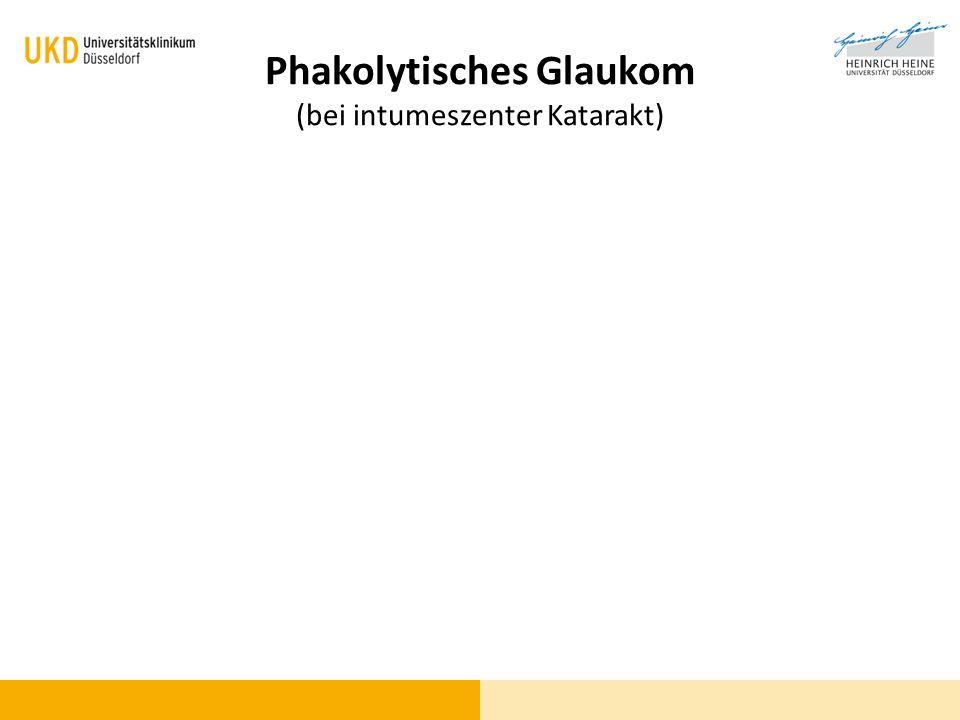 Phakolytisches Glaukom (bei intumeszenter Katarakt)