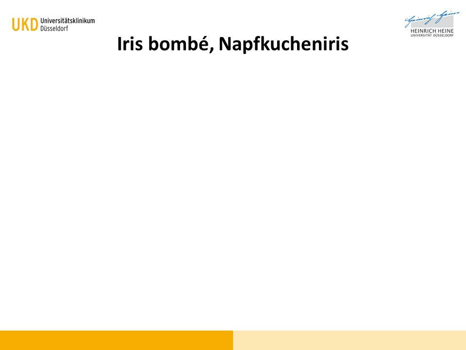 Iris bombé, Napfkucheniris