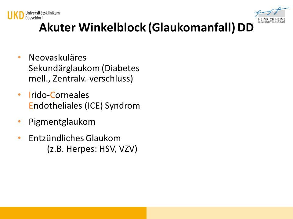 Akuter Winkelblock (Glaukomanfall) DD