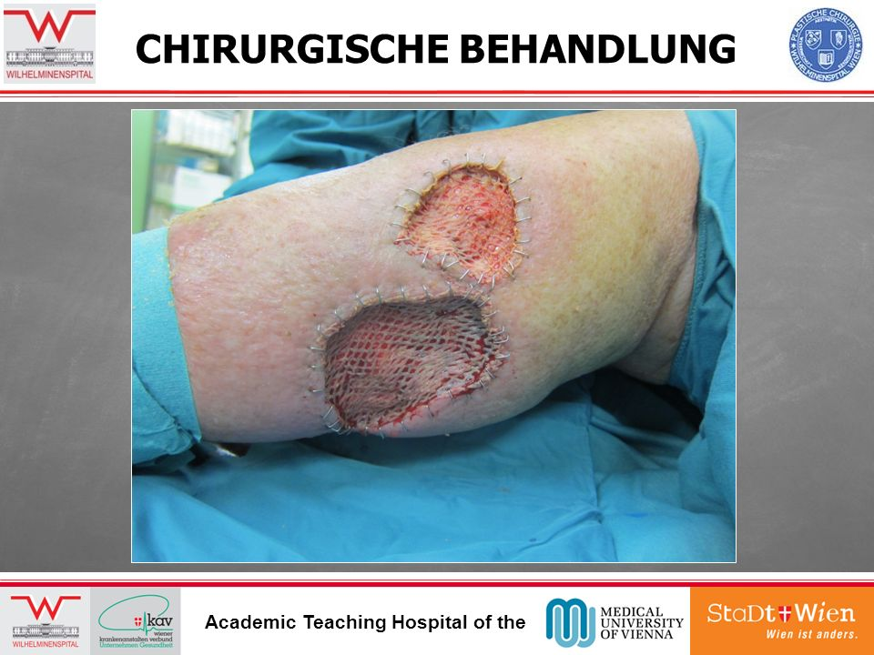 CHIRURGISCHE BEHANDLUNG Academic Teaching Hospital of the