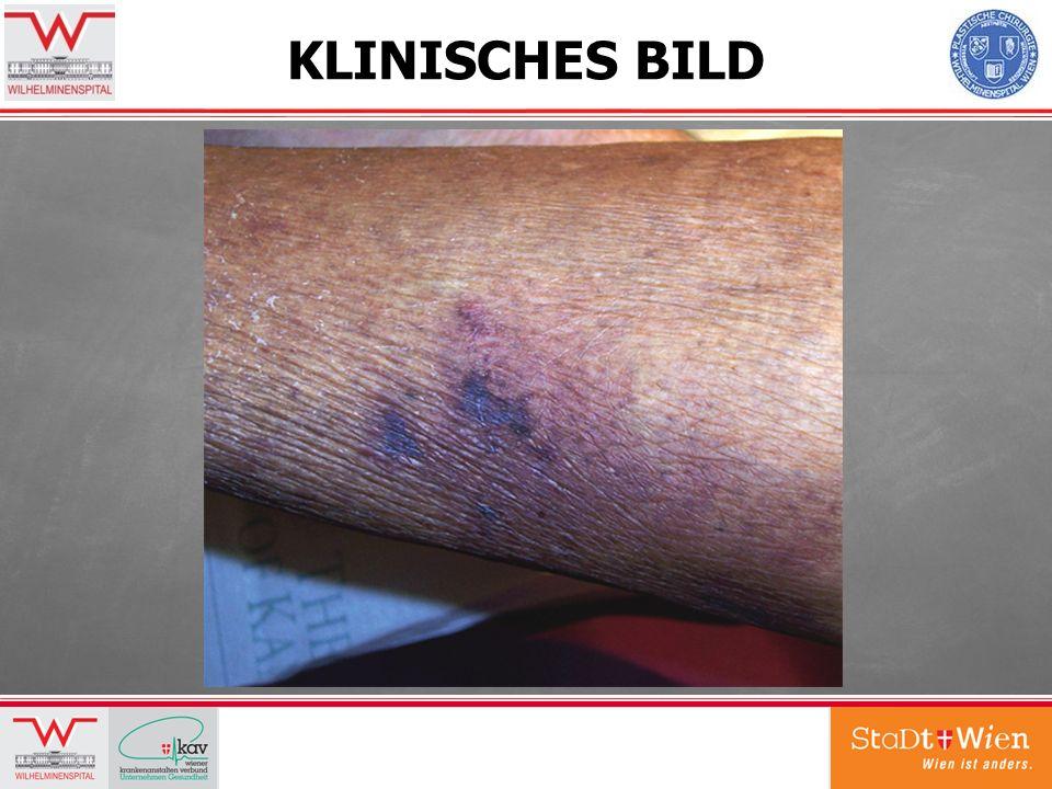KLINISCHES BILD