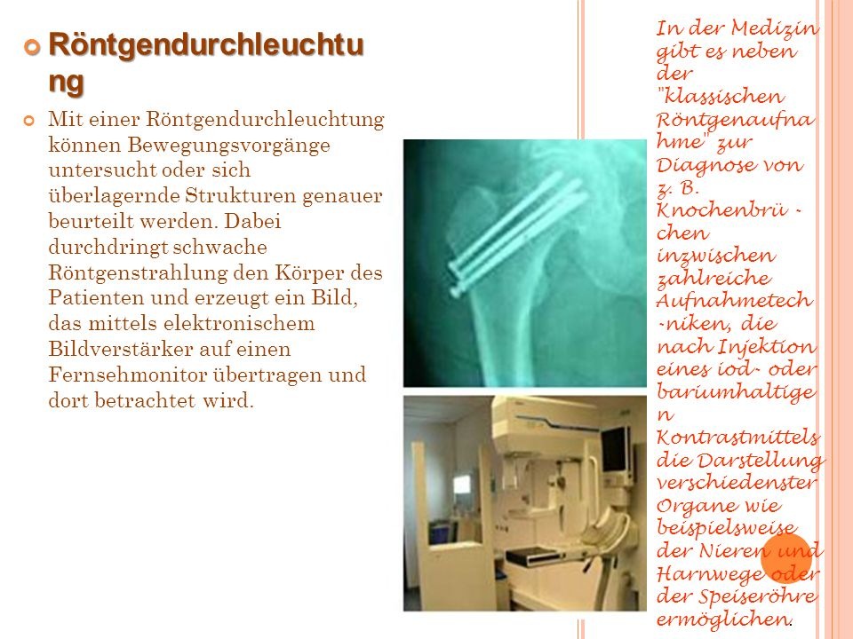 Röntgendurchleuchtung