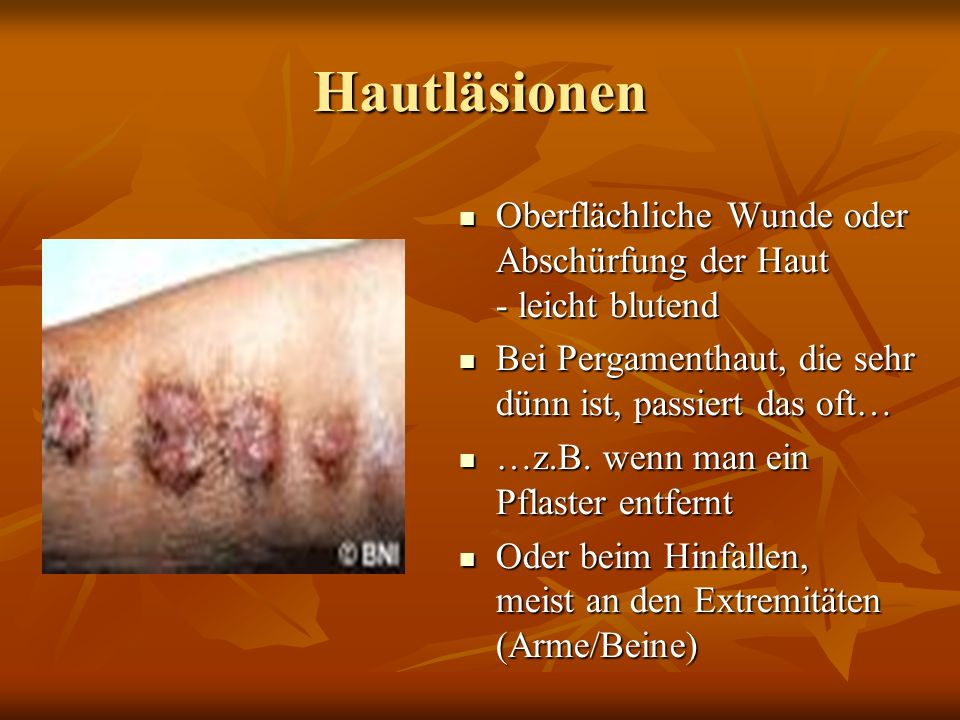 Hautläsionen Oberflächliche Wunde oder Abschürfung der Haut - leicht blutend. Bei Pergamenthaut, die sehr dünn ist, passiert das oft…