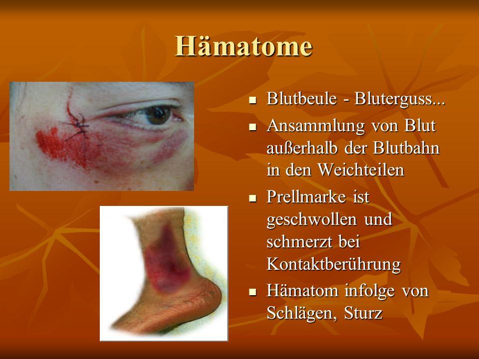 Hämatome Blutbeule - Bluterguss...