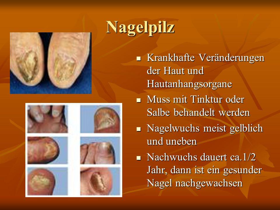 Nagelpilz Krankhafte Veränderungen der Haut und Hautanhangsorgane