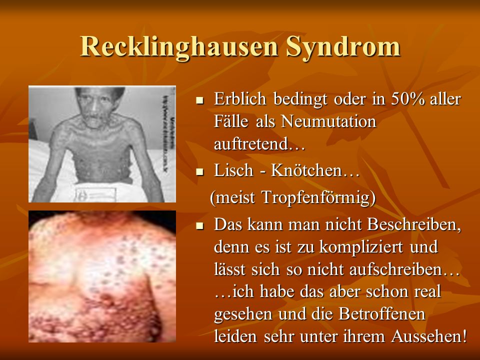 Recklinghausen Syndrom