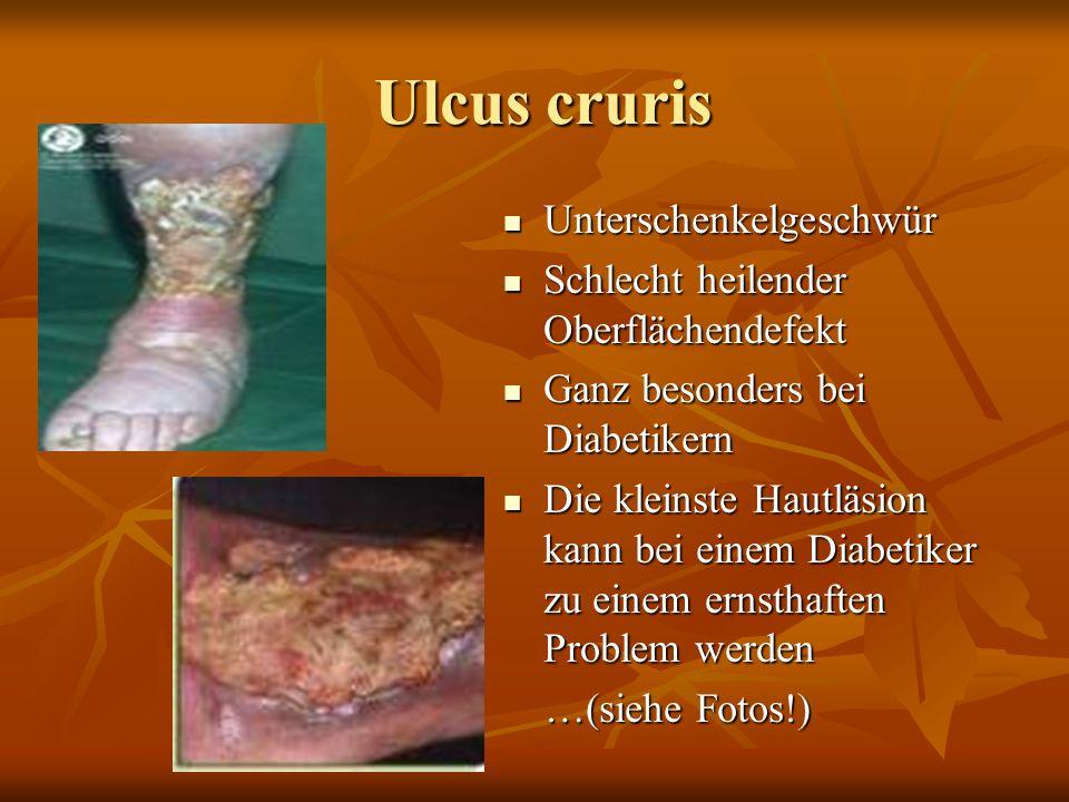 Ulcus cruris Unterschenkelgeschwür
