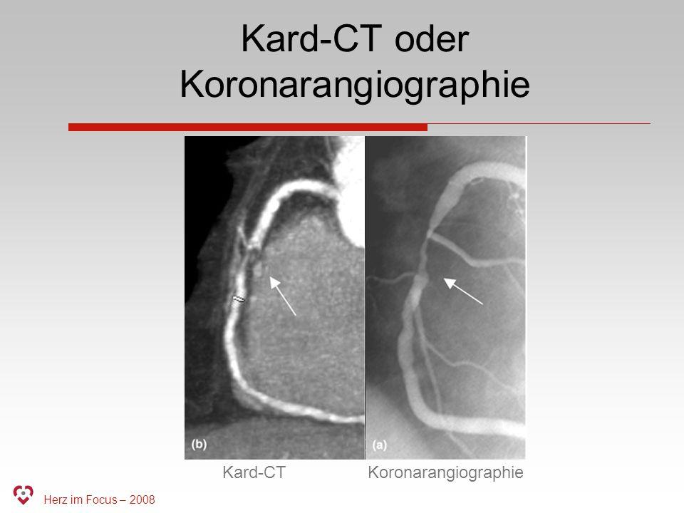 Kard-CT oder Koronarangiographie