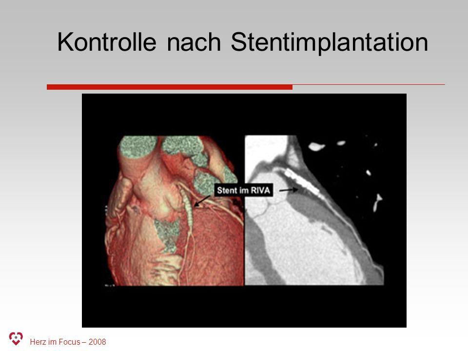 Kontrolle nach Stentimplantation
