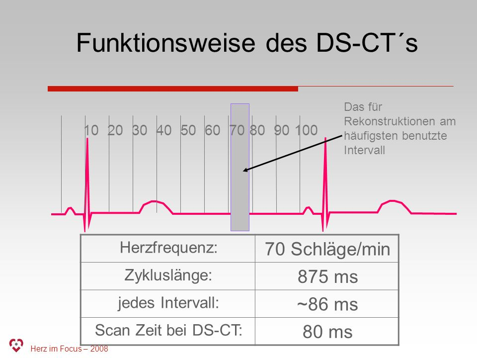 Funktionsweise des DS-CT´s