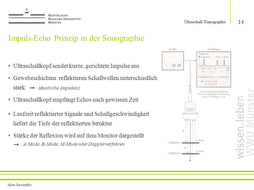 Impuls-Echo Prinzip in der Sonographie