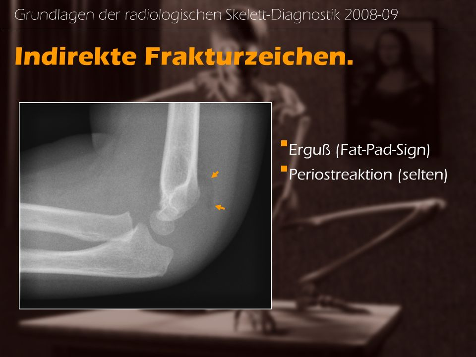 Indirekte Frakturzeichen.