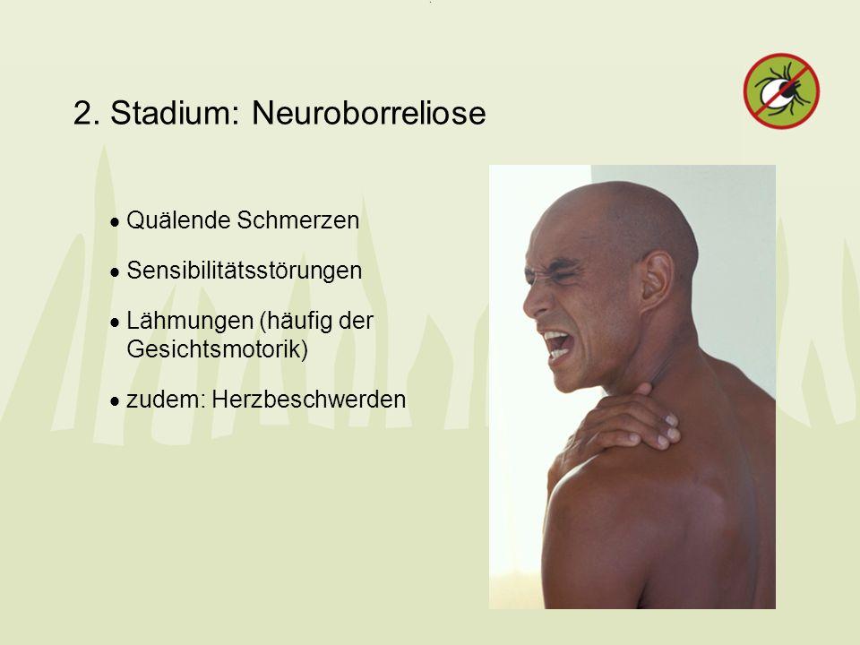 2. Stadium: Neuroborreliose