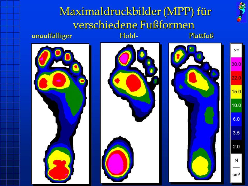 Maximaldruckbilder (MPP) für verschiedene Fußformen unauffälliger