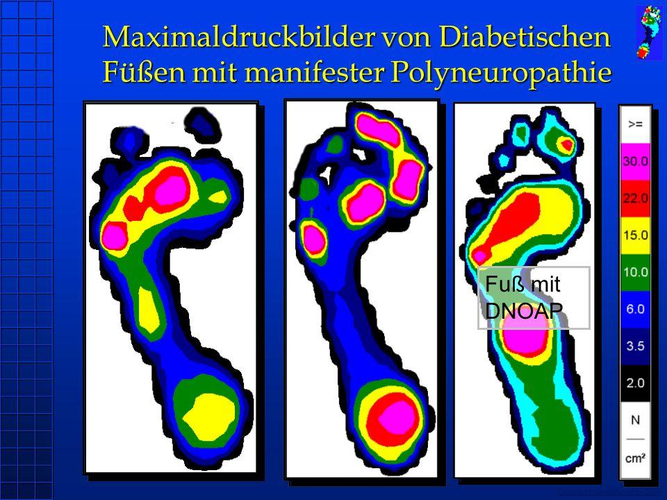 Maximaldruckbilder von Diabetischen Füßen mit manifester Polyneuropathie