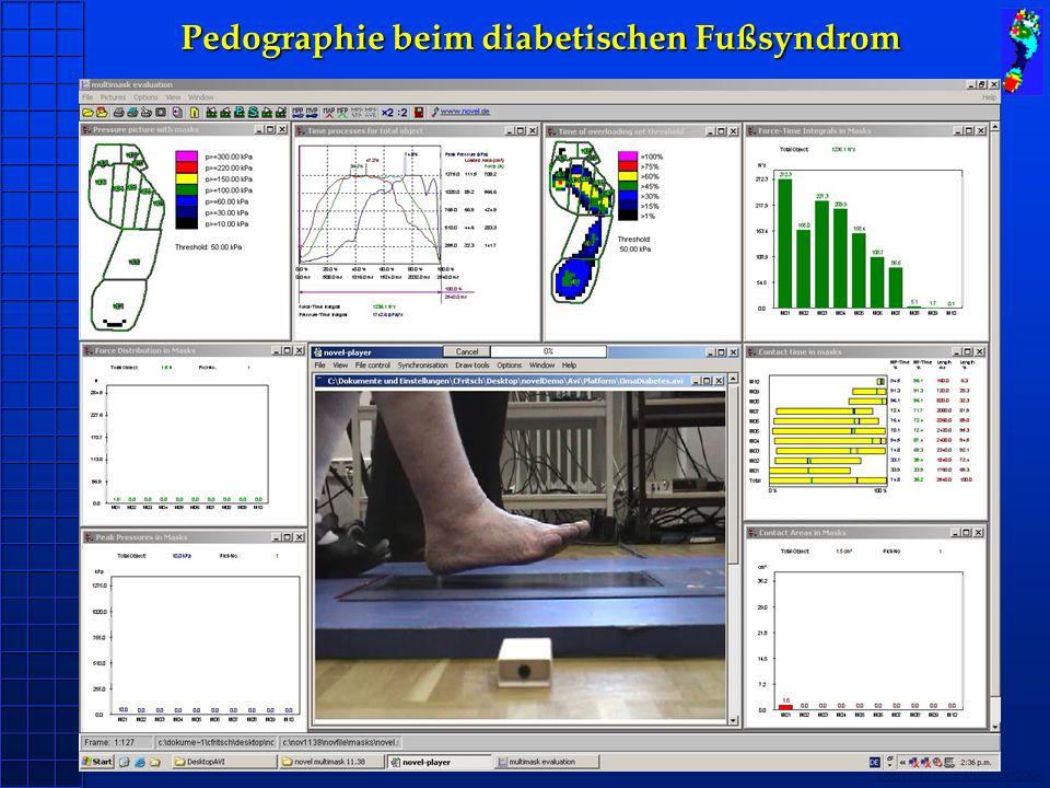 Pedographie beim diabetischen Fußsyndrom