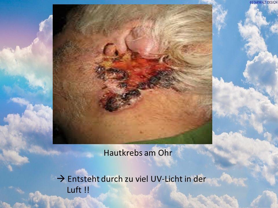 Hautkrebs am Ohr  Entsteht durch zu viel UV-Licht in der Luft !!