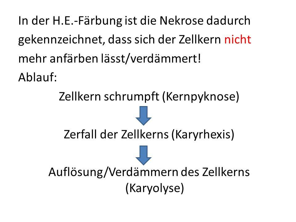 In der H.E.-Färbung ist die Nekrose dadurch gekennzeichnet, dass sich der Zellkern nicht mehr anfärben lässt/verdämmert.