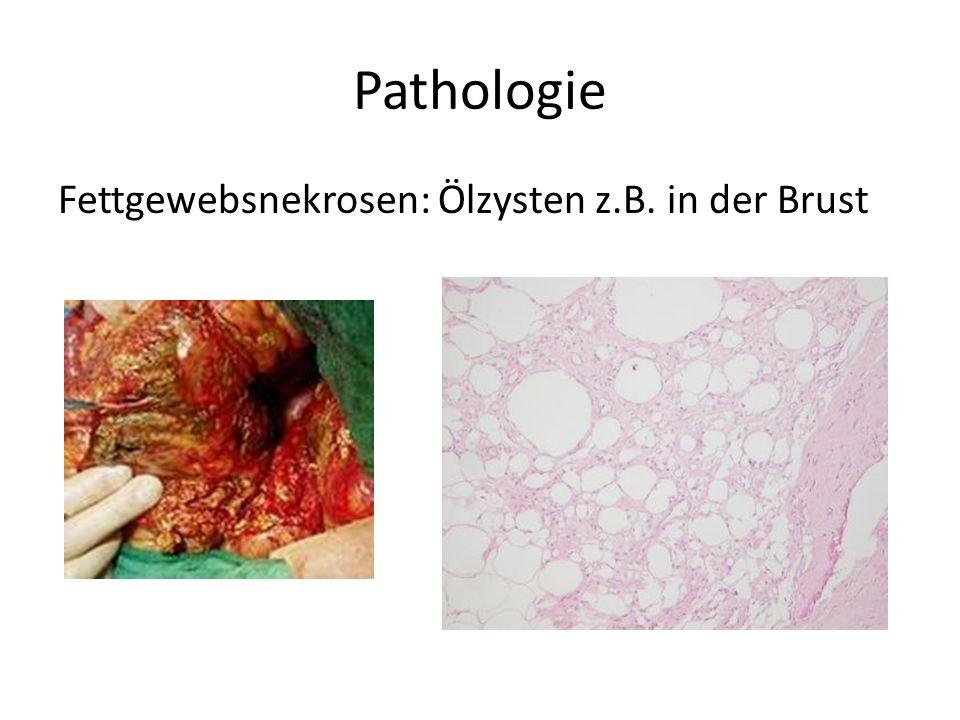 Pathologie Fettgewebsnekrosen: Ölzysten z.B. in der Brust