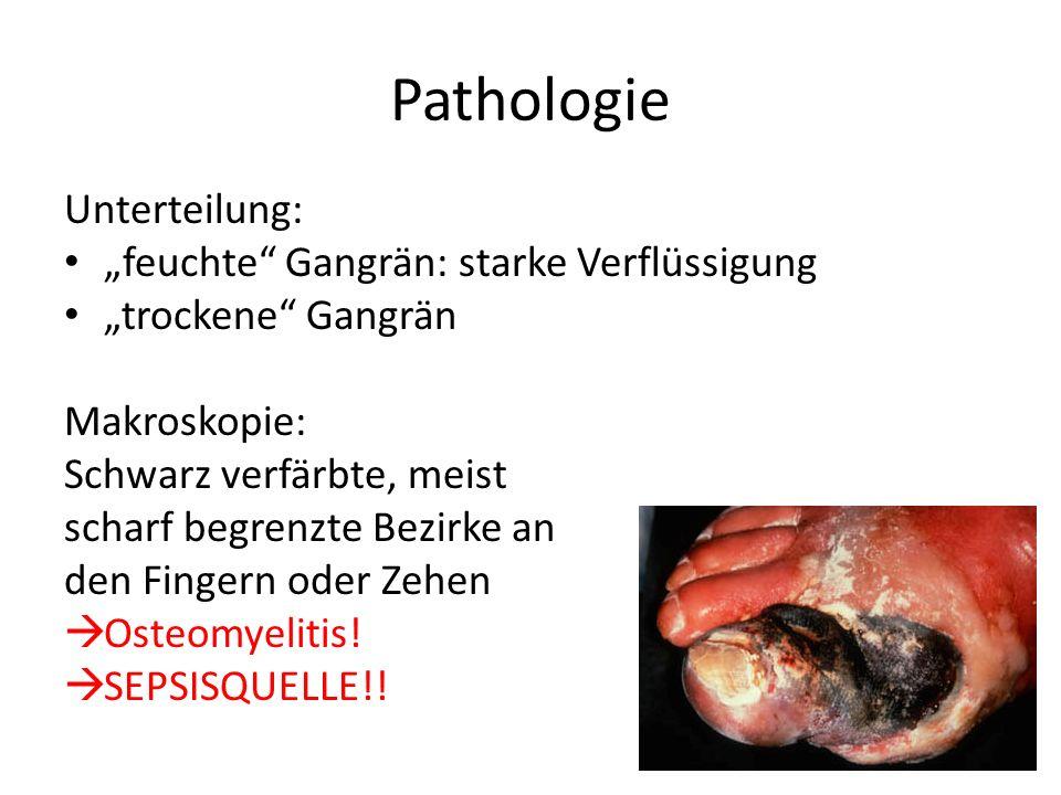 """Pathologie Unterteilung: """"feuchte Gangrän: starke Verflüssigung"""
