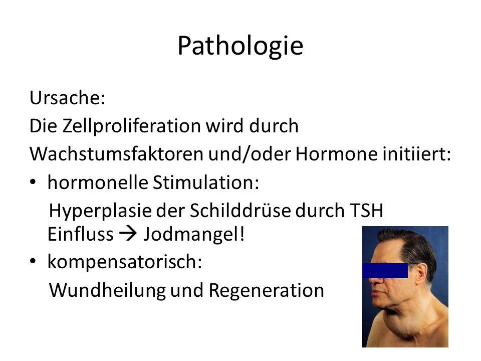 Pathologie Ursache: Die Zellproliferation wird durch