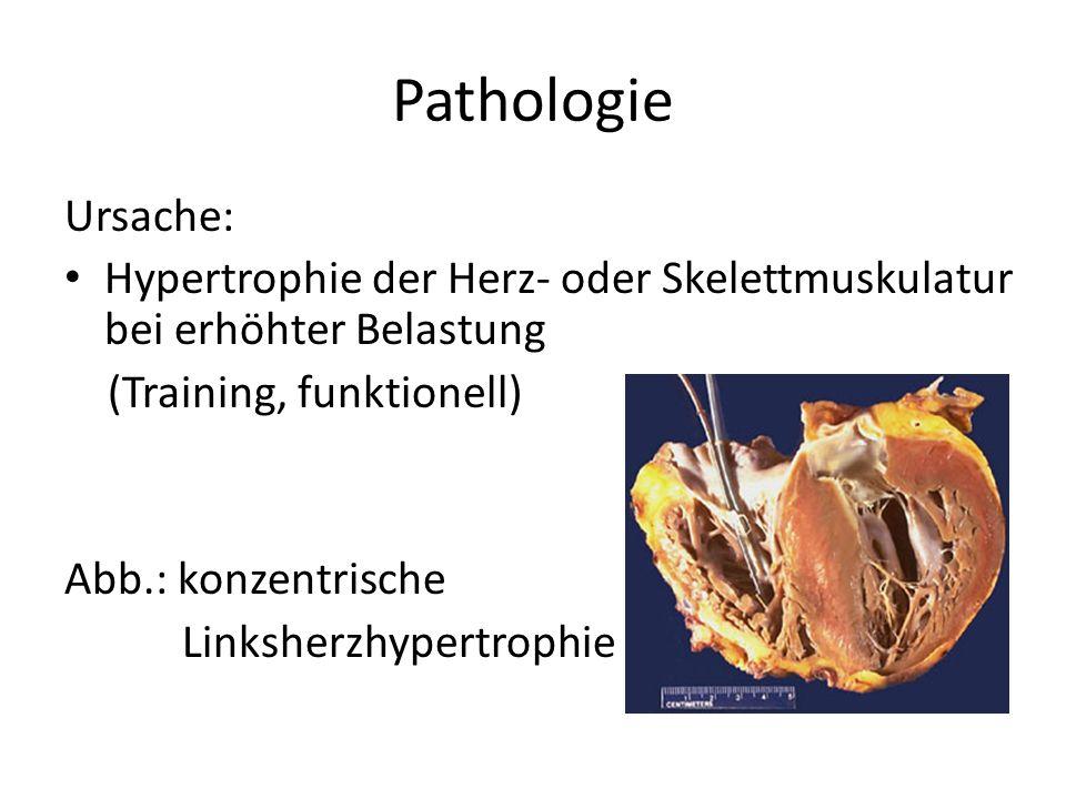 Pathologie Ursache: Hypertrophie der Herz- oder Skelettmuskulatur bei erhöhter Belastung. (Training, funktionell)