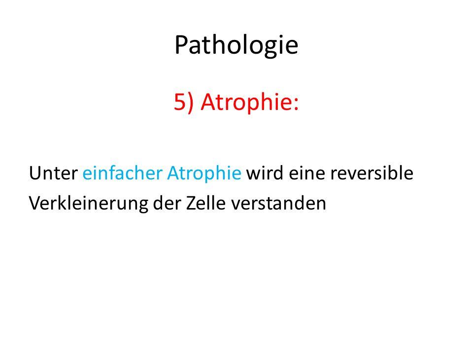 Pathologie 5) Atrophie: Unter einfacher Atrophie wird eine reversible