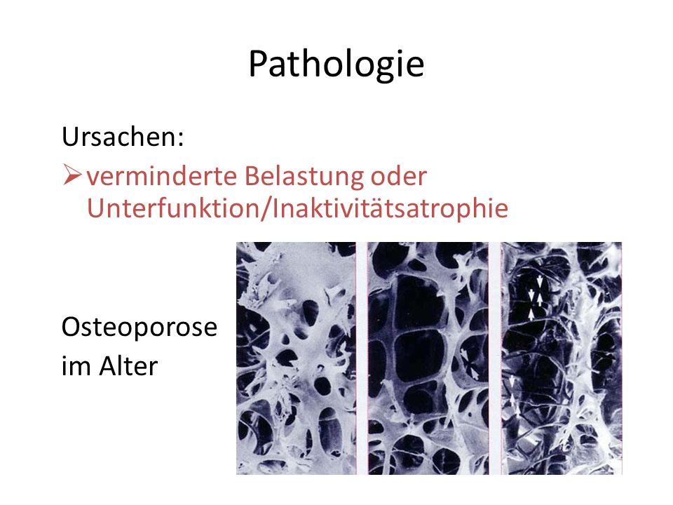 Pathologie Ursachen: verminderte Belastung oder Unterfunktion/Inaktivitätsatrophie.