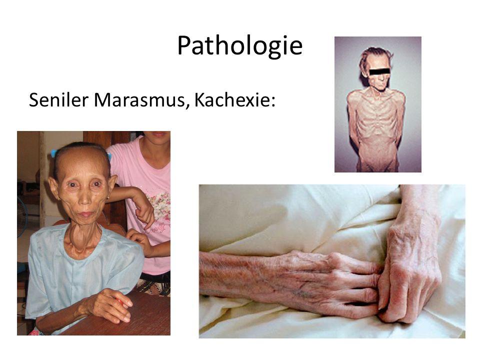 Pathologie Seniler Marasmus, Kachexie: