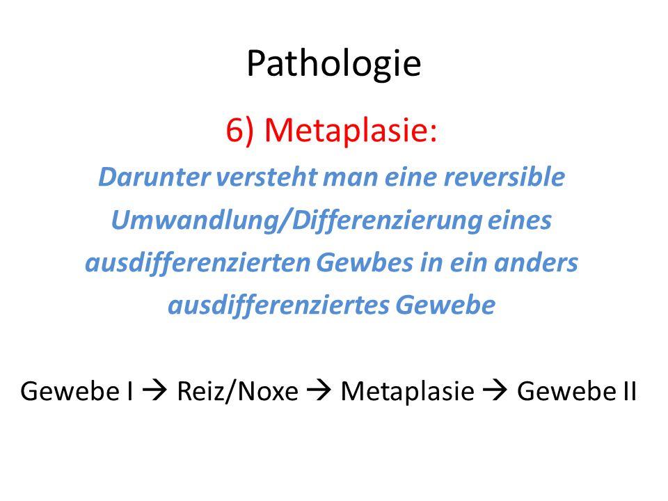 Pathologie 6) Metaplasie: Darunter versteht man eine reversible