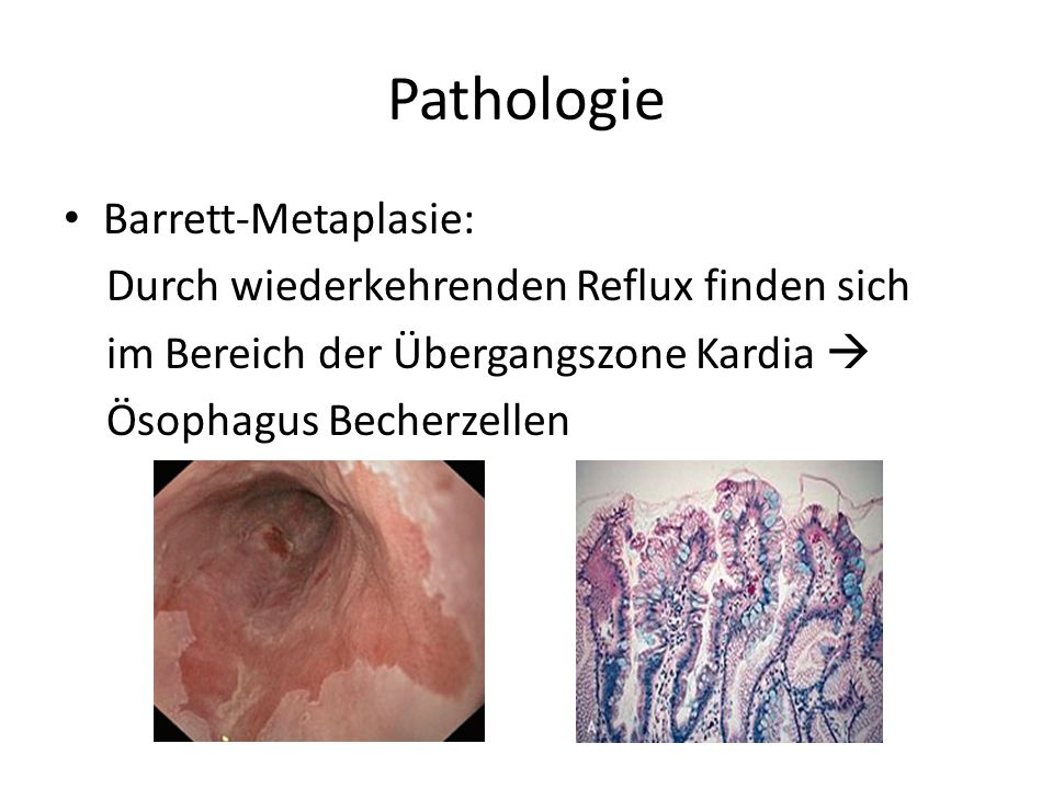 Pathologie Barrett-Metaplasie: