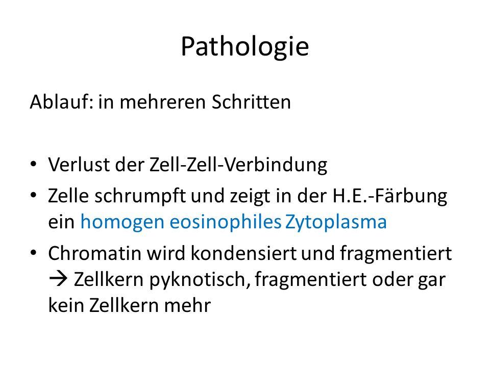 Pathologie Ablauf: in mehreren Schritten