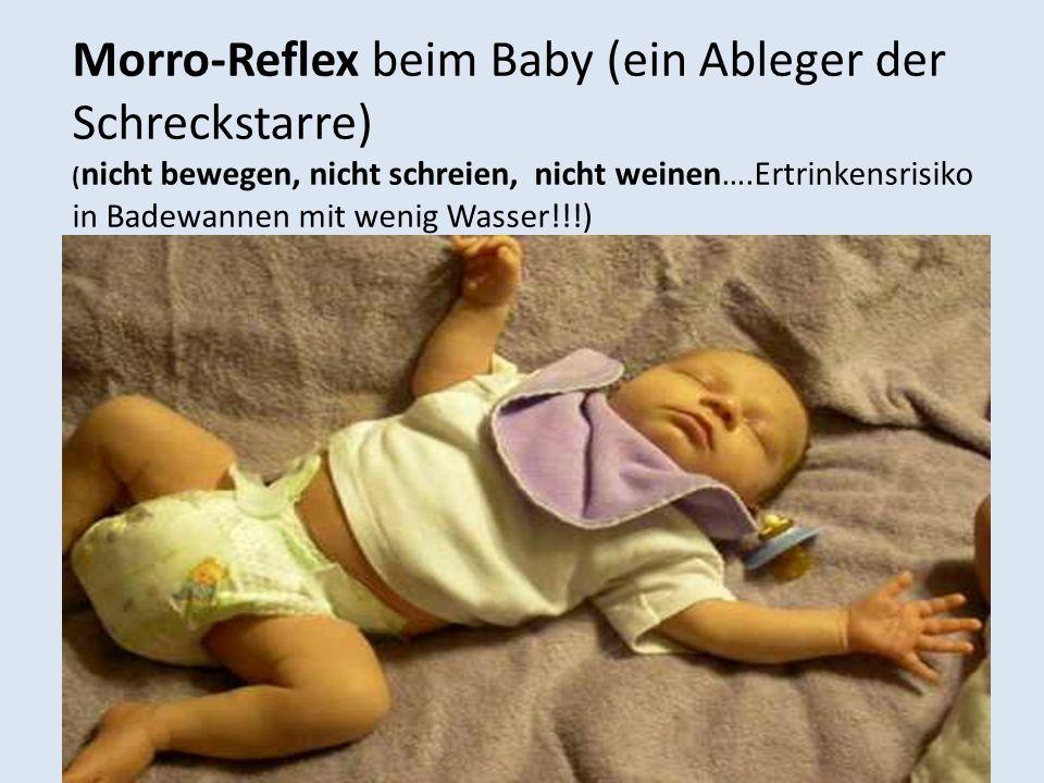 Morro-Reflex beim Baby (ein Ableger der Schreckstarre)