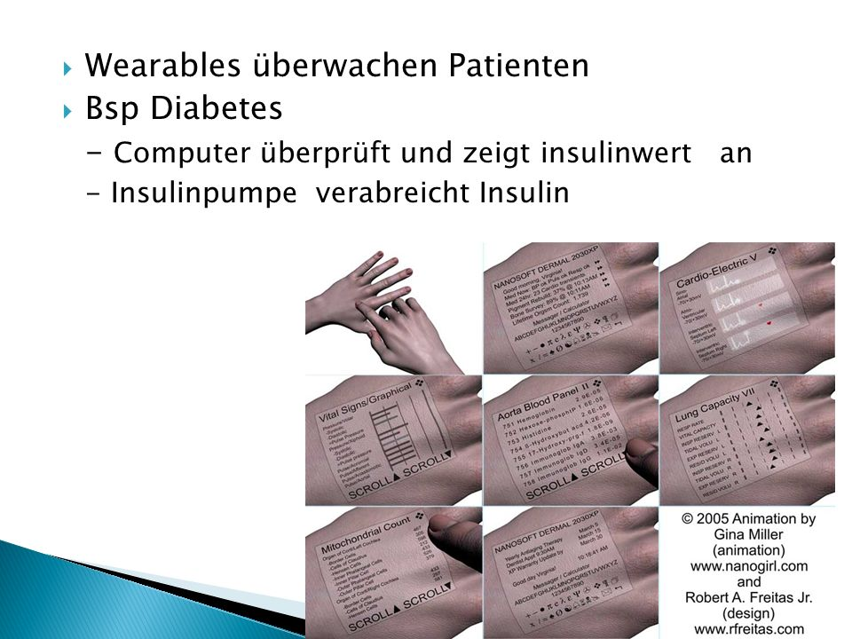 Wearables überwachen Patienten Bsp Diabetes