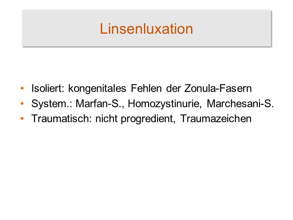 Linsenluxation Isoliert: kongenitales Fehlen der Zonula-Fasern