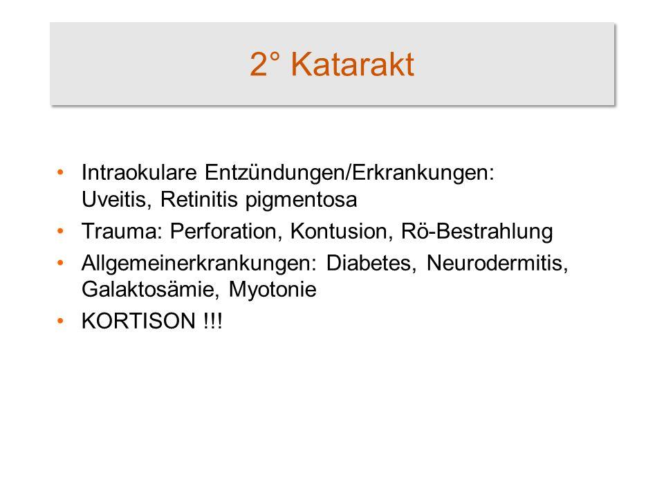 2° Katarakt Intraokulare Entzündungen/Erkrankungen: Uveitis, Retinitis pigmentosa. Trauma: Perforation, Kontusion, Rö-Bestrahlung.