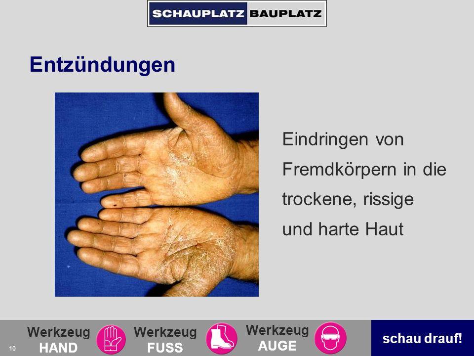 Entzündungen Eindringen von Fremdkörpern in die trockene, rissige und harte Haut