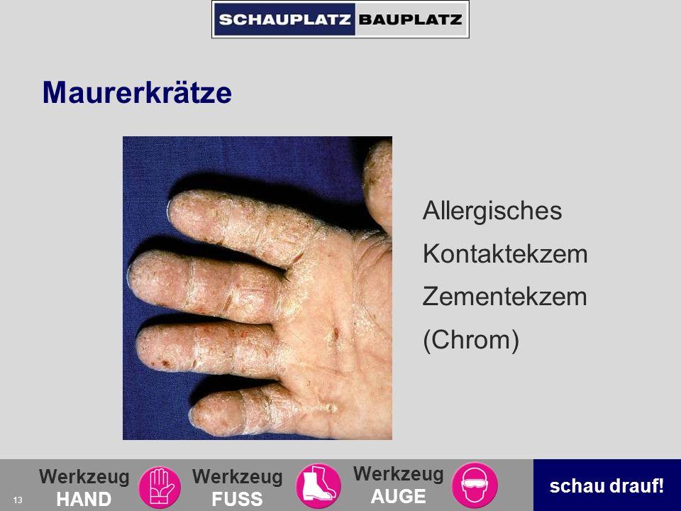 Maurerkrätze Allergisches Kontaktekzem Zementekzem (Chrom)