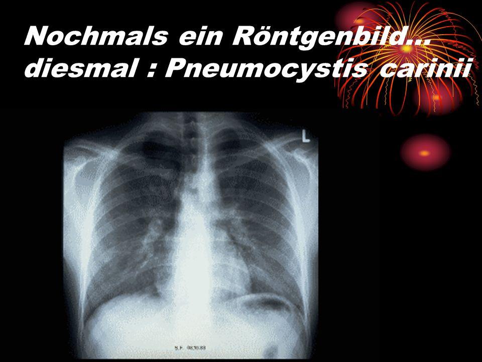 Nochmals ein Röntgenbild… diesmal : Pneumocystis carinii