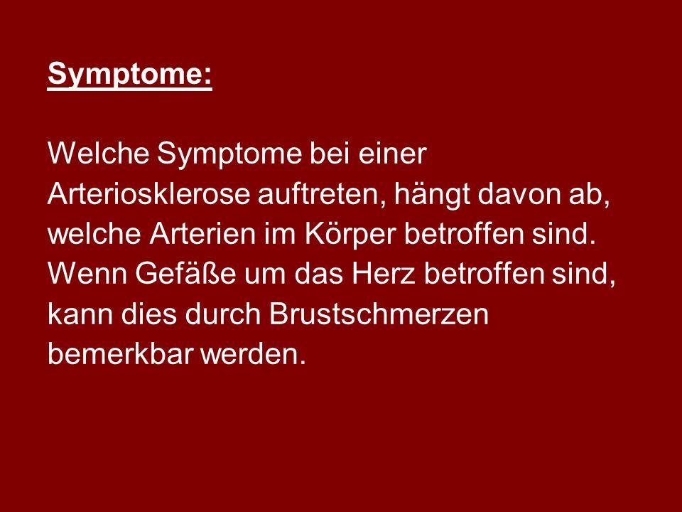 Symptome: Welche Symptome bei einer. Arteriosklerose auftreten, hängt davon ab, welche Arterien im Körper betroffen sind.