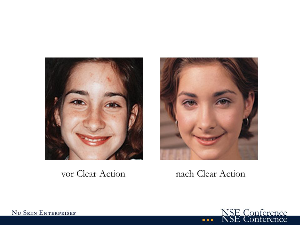 vor Clear Action nach Clear Action
